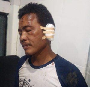 Polsek Batununggal Harus Tegas Dalam Kasus Pengeroyokan Asep Sukmana